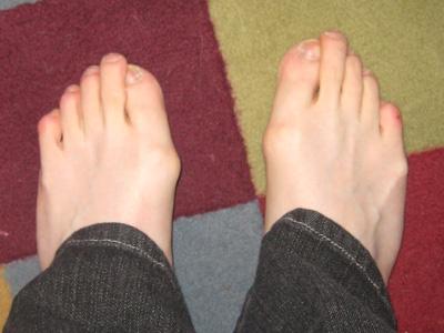Weird feet